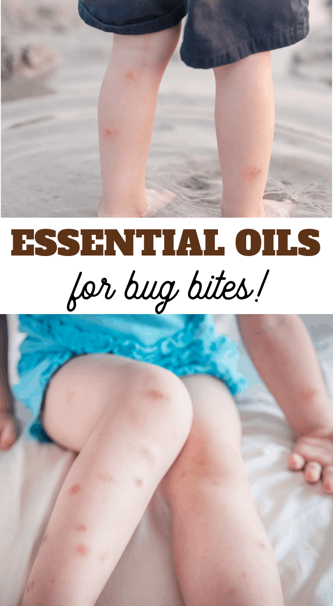 the best essential oils to have on hand in case of bug bites and stings