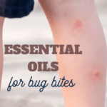 these common essential oils should be in your first aid kit for bug bites