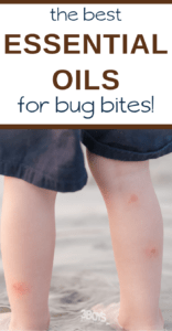 heal bug bites with this list of essential oils