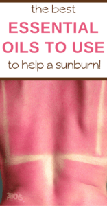 heal a bad sunburn quickly with these essential oils